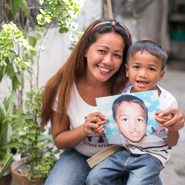 Globe, Smile Train Help Children with Cleft Lip and Palate