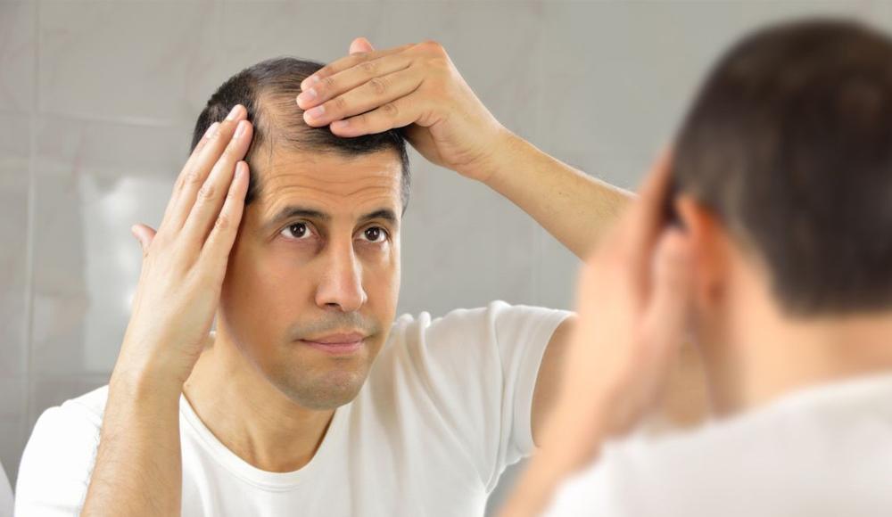 reasons for hair loss in men and women - bald man - gray hair - alopecia